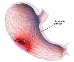 stomach ca