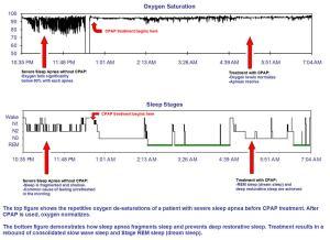 CPAP Tx